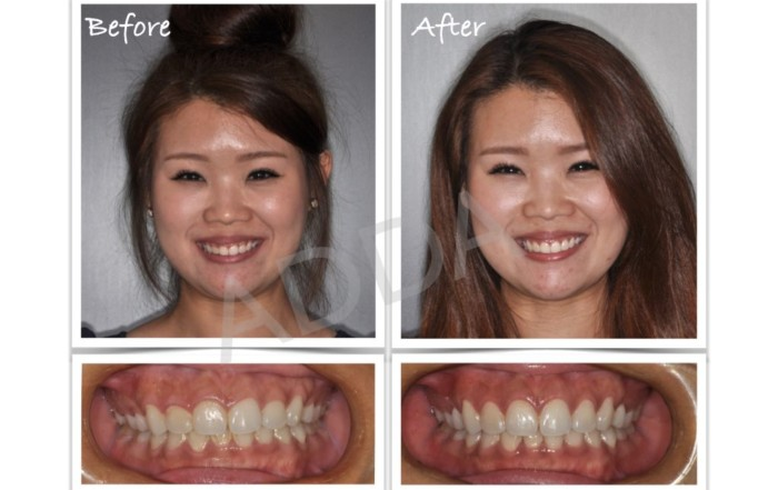 Laser Gum Reshaping Recontouring For Gummy Smiles Adda
