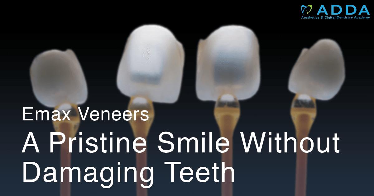 Emax Veneers: A Pristine Smile without Damaging Teeth