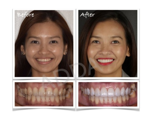 Smile Makeover Case Study 12: Invisalign and Porcelain Veneers – Joreen