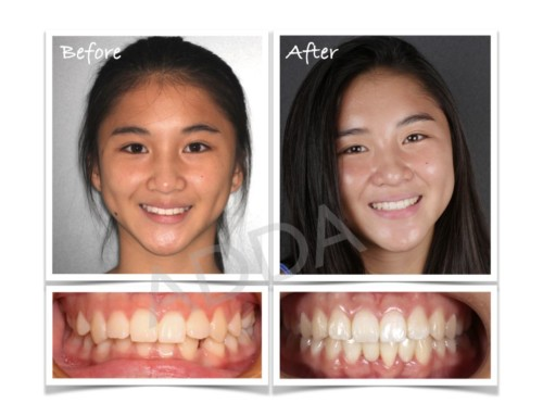 Invisalign Before and After Case Study 7