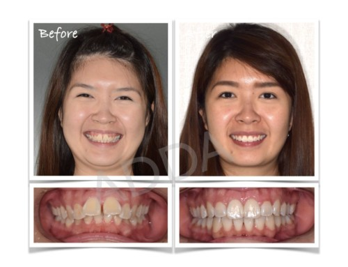 Invisalign Before and After Case Study 8