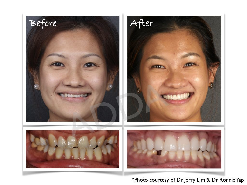 Smile Makeover Case Study 14 Invisalign Laser Gum