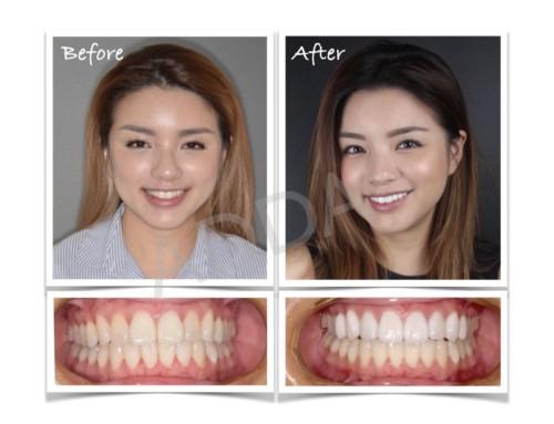 Smile Makeover Case Study 16: Porcelain Veneers