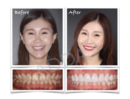 Smile Makeover Case Study 17: Porcelain Veneers