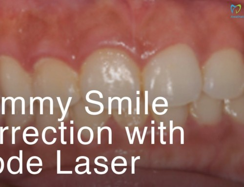 Gummy Smile Correction With Diode Laser